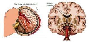 Krwotok śródczaszkowy u noworodka