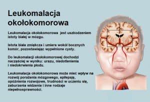 Leukomalacja okołokomorowa