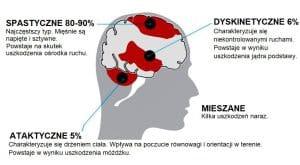 mózgowe porażenie dziecięce przyczyny