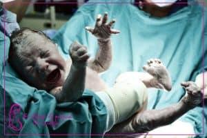 Niedotlenienie mózgu u noworodka